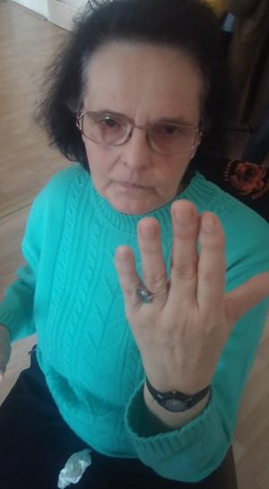 Az asszony görbe ujja kiegyenesedett